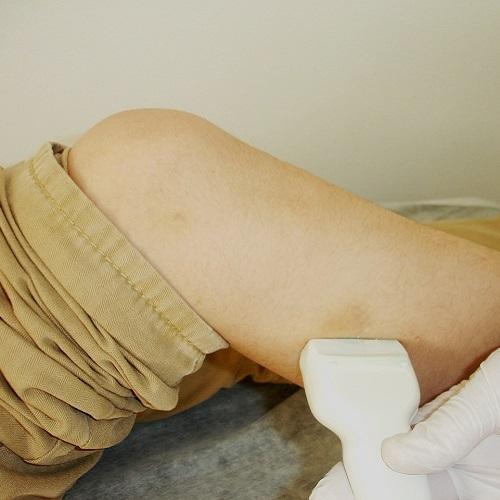 Ultrazvuk i doppler vena