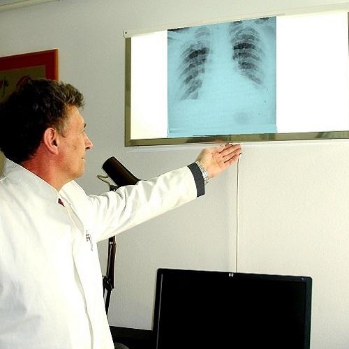 pulmologija 1